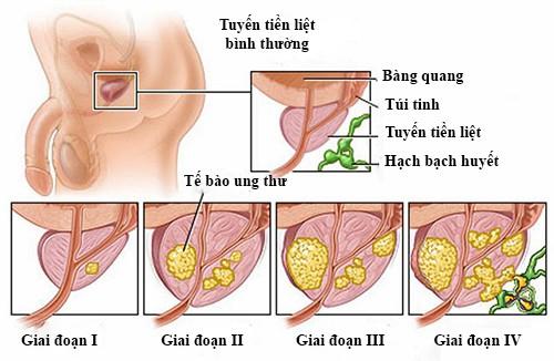 các giai đoạn phát triển, ung thư tuyến tiền liệt