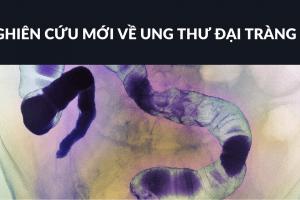 ung thư đại tràng, khối u, đột biến