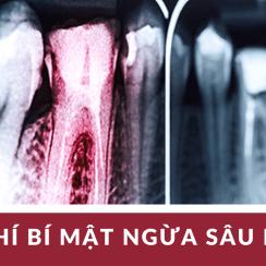 G43, sâu răng, đau răng, nhức răng, cách chữa đau răng, cách trị nhức răng