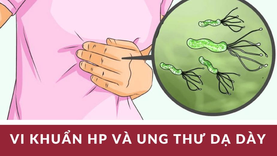 vi khuẩn HP và ung thư dạ dày, vi khuẩn hp lây qua đường nào, vi khuẩn hp sống được bao lâu