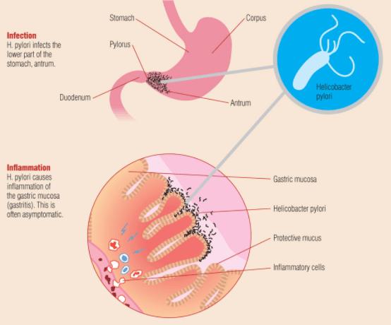 vi khuẩn HP sống ở đâu, vi khuẩn HP lây qua đường nào, vi khuẩn HP dương tính