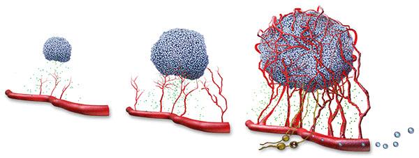 Bước tiến mới trong điều trị ung thư di căn, Di căn, Ung thư di căn, Ung thư di căn là gì, Vì sao ung thư di căn, Ung thư tiến triển và di căn như thế nào, ung thư di căn sống được bao lâu, ung thư di căn hạch, ung thư di căn ổ bụng,