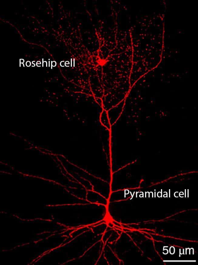 Phát hiện tế bào thần kinh mới, tế bào thần kinh, neuron, tế bào tháp, rosehip, não bộ